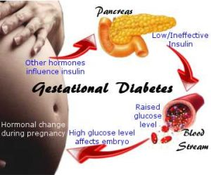 What-is-gestational-diabetes