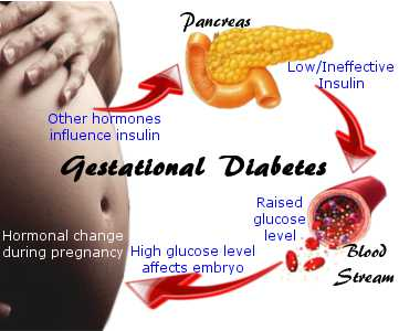 Gestational Diabetes Pre Test Diet